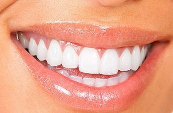 Teeth Whitening Flower Mound