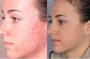 skin treatment Before & After